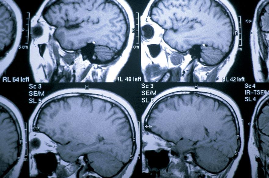 MRI scan sheets